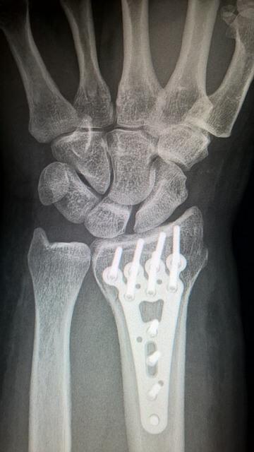 bone injuries plaster of paris